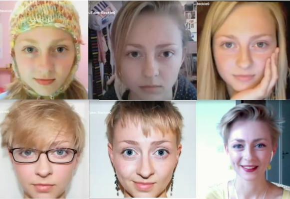 Kids Hair Loss – Trichotillomania Disorder