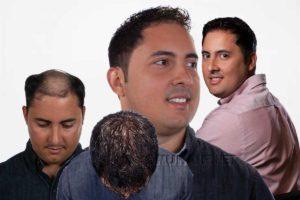 Men's Hair Restoration No Surgery Replacement