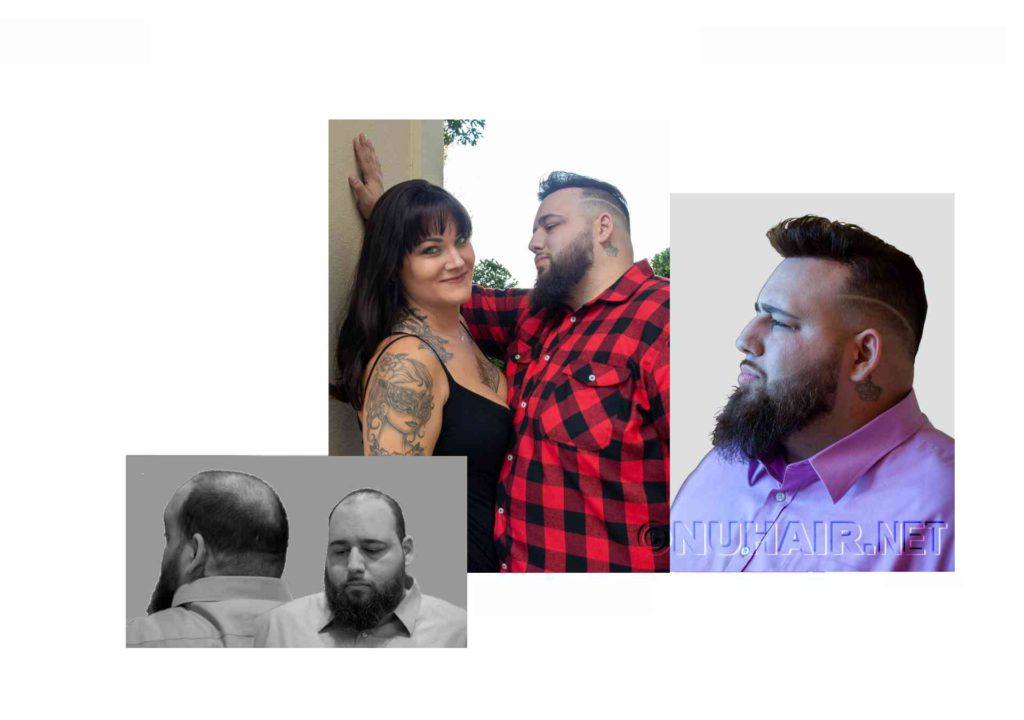 Men's Hair Restoration Hair Replacement Dallas DFW Texas