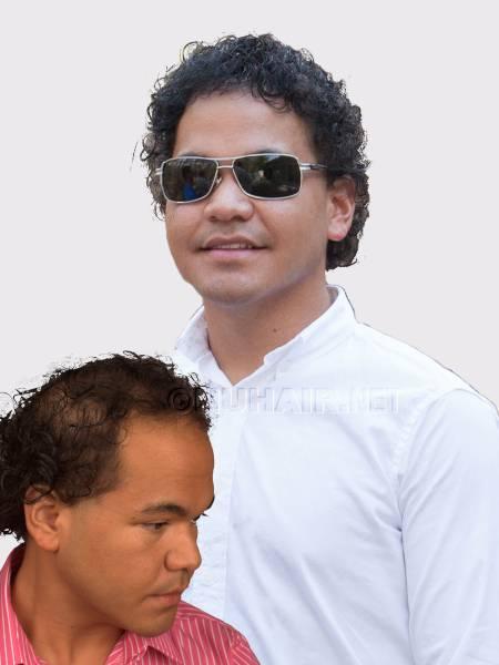 Men's Hair Loss Treatment Hair Replacement Dallas TX