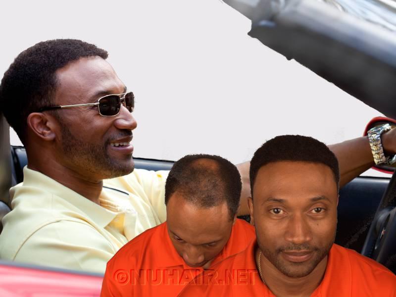 Men's Hair Replacement Hair Restoration Treatment Dallas