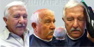 Men Hair Restoration Not Hair Transplant Surgery Dallas TX