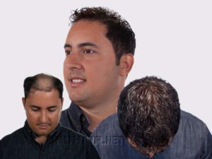 Men's Hair Restoration No Surgery Replacement