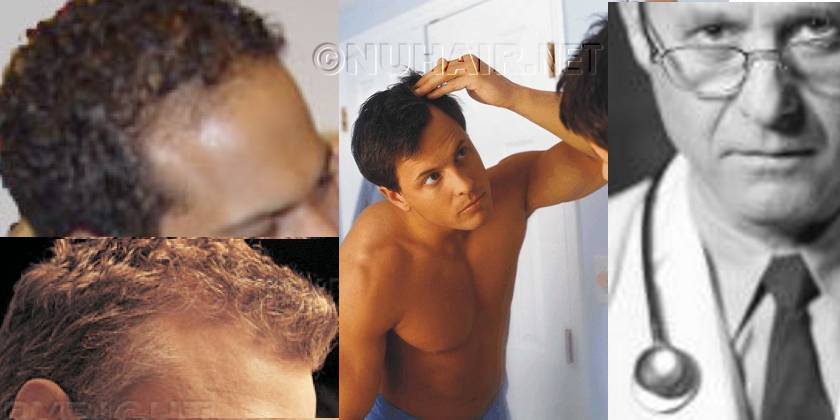 Texas Hair Transplant Surgery Doctor with Patient Dallas DFW