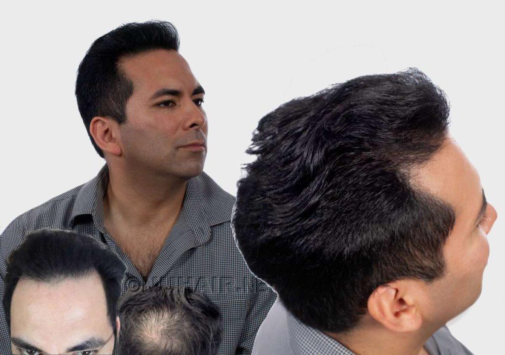 Laser Hair Therapy Male Hair Loss Treatment Healthy Hair Growth Dallas DFW TX